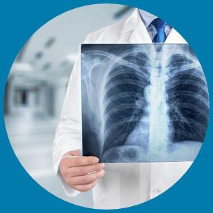 Arzt schaut auf Röntgenbild einer Lunge